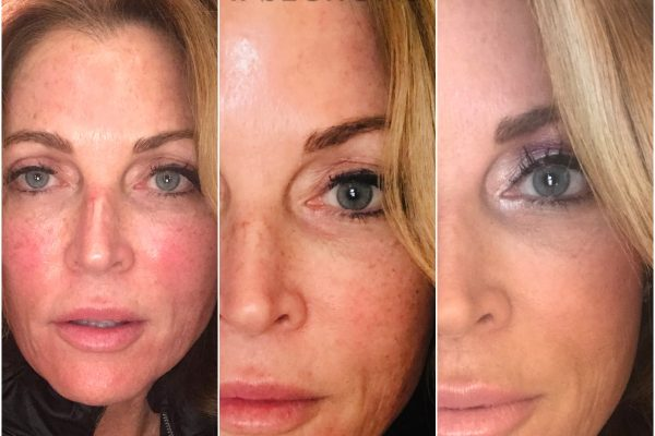 Advanced PRP Microneedling & Injections